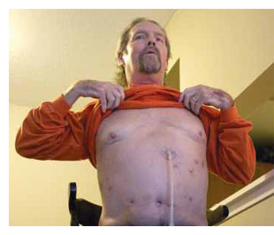 Former shipyard worker James Sawyer, 53, needed a double lung transplant to treat hard-metal disease.