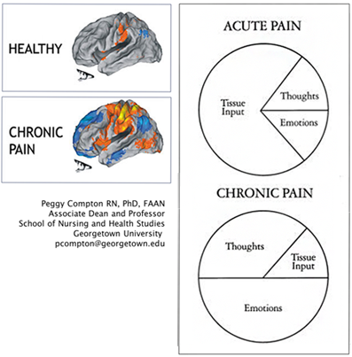 These images depict acute, healthy pain in the brain that contains input from tissues and then a smaller fraction painful  thoughts and emotions, and then a brain with chronic pain, which covers half being due to emotions, and greater than one third to do with thoughts, and then a small percentage due to tissue input