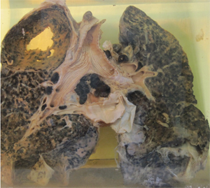 A picture of a preserved set of lungs covered with black damage from Silica